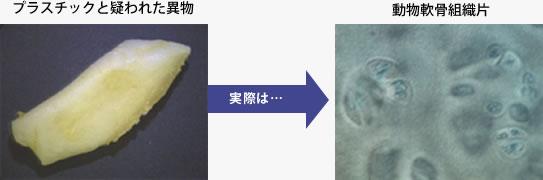 プラスチックと疑われた異物事例画像