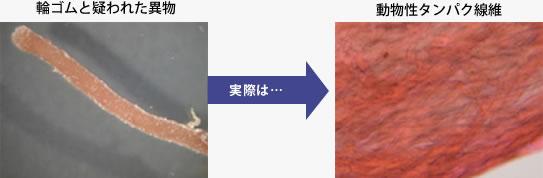 輪ゴムと疑われた異物事例画像